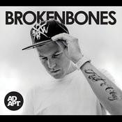 Broken Bones Songs